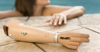 armprotese